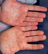 foto de manchas de sarampo na mão