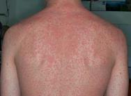 manchas vermelhas no corpo